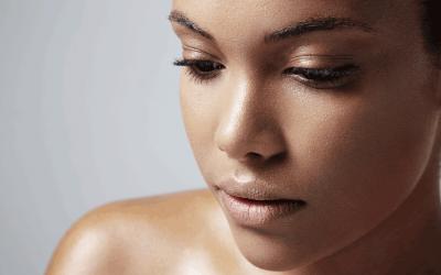Pigmentstörungen – die Haut im Ungleichgewicht