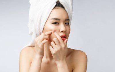 Die 5 besten Insidertipps gegen Hautunreinheiten